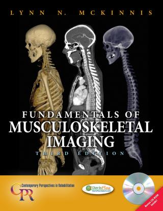 Fundamentals of musculoskeletal imaging by